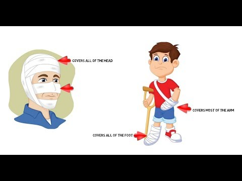 How to perform Wudhu on a Cast or Cut? Wudhu al Jabira